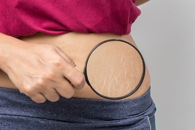 stretch marks on the hip